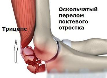Несрастание локтевого сустава корни конского щавеля лечение суставов