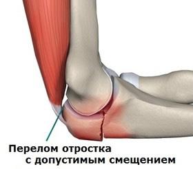 Пластины локтевого сустава артроз унковертебральных и дугоотростчатых суставов