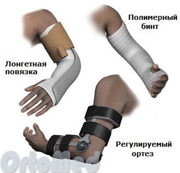 Перелом руки в локтевом суставе фото колос санаторий лечение суставов