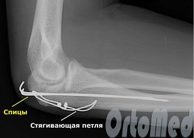 Перелом локтевого сустава лечение приобретенная дисплазия тазобедренного сустава у собак