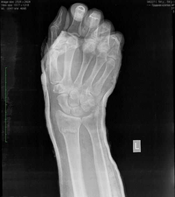 Оскольчатый перелом лучезапястного сустава - как правильно востанавливаться массаж при дисплазии тазобедренных суставов у детей видео скачать