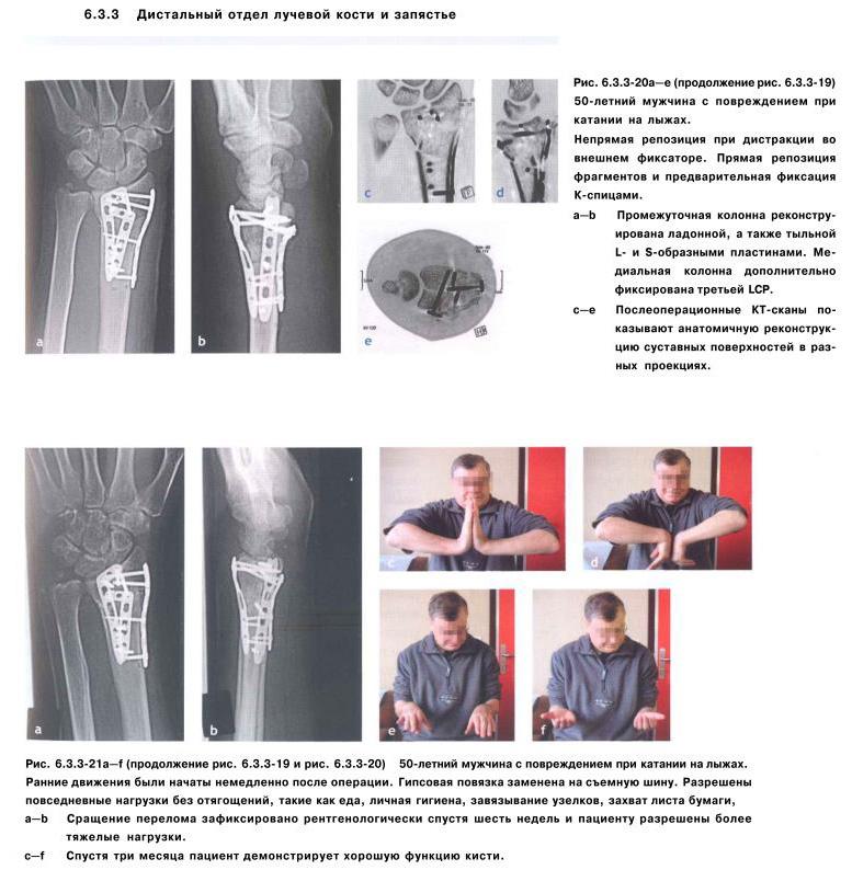 Переломы лучевой кости руки в типичном месте - Больница скорой ...