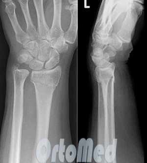 Открытый перелом лучезапястного сустава динамический ортез на голеностопный сустав malleotrain цена