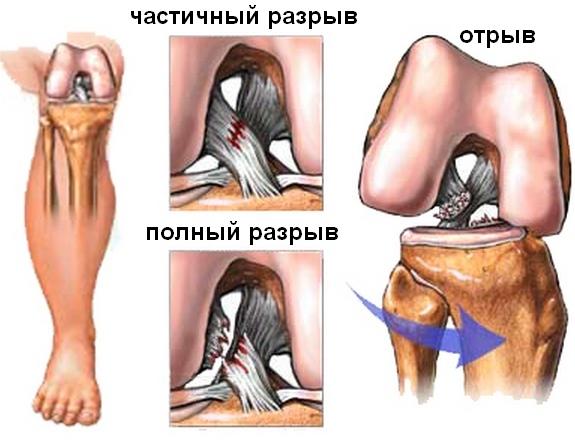 почему болит колено в задней части