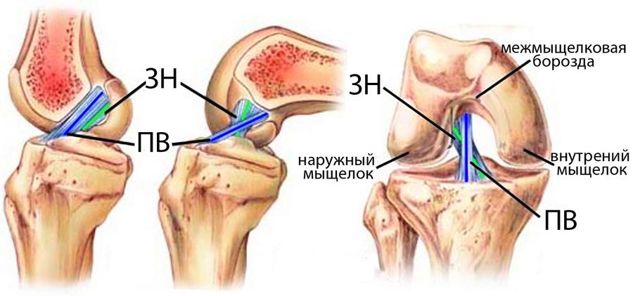 tratamentul cu unguent pentru artroza brahială
