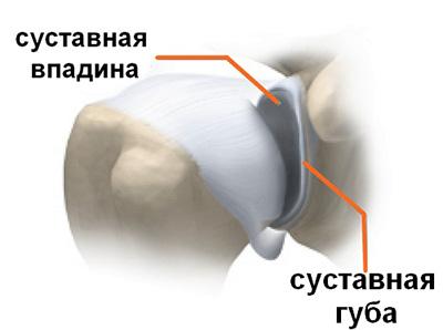 об операции замена тазобедренного сустава