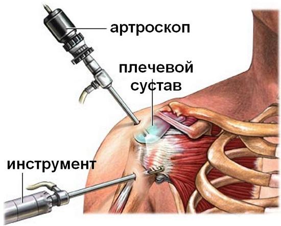 Якорные фиксаторы плечевого сустава шишки на суставах как лечить