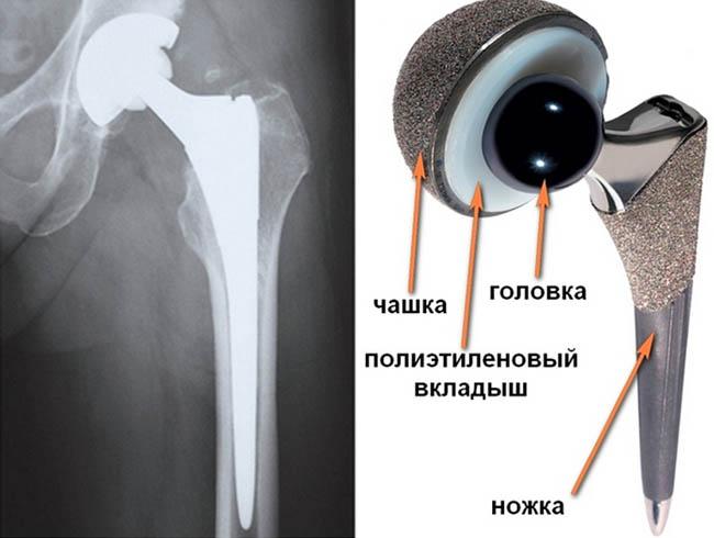Трасплонтант тазобедреного сустава спортивное питание для укрепления суставов и связок